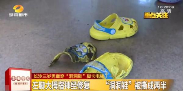 #3岁男童穿洞洞鞋脚被卷入手扶电梯#脚趾头一半都没了      别让孩子穿洞洞鞋乘电梯